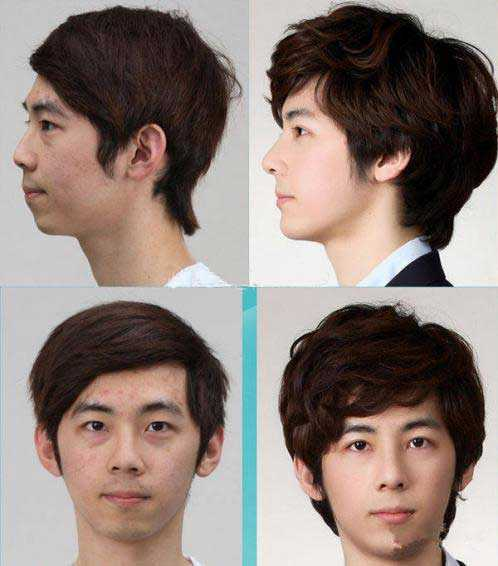 男牙齿整形前后对比 男人整容前后对比照图片